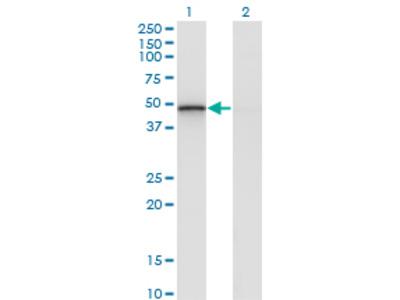 RCN2 Monoclonal Antibody
