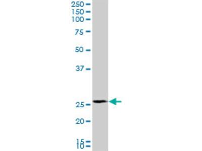 PMM2 Monoclonal Antibody