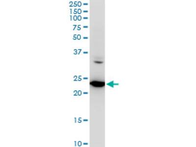SEC22B Monoclonal Antibody