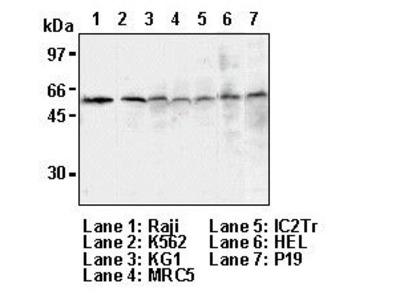 Anti-Txnip (VDUP1) (Human) mAb