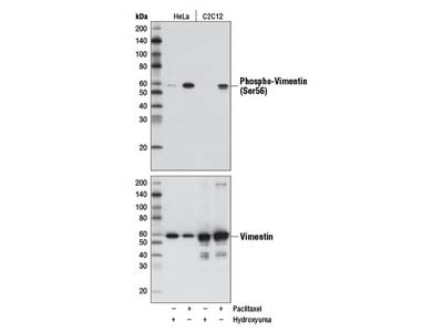 Phospho-Vimentin (Ser56) (D5H2) Rabbit mAb