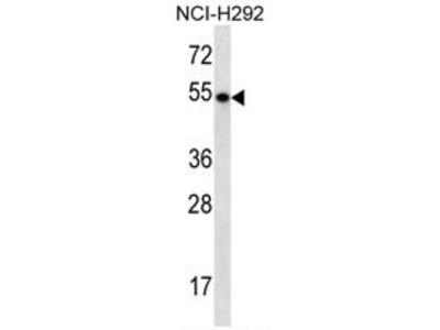 TBC1D3 (TBC1D3F) (C-term) rabbit polyclonal antibody, Aff - Purified