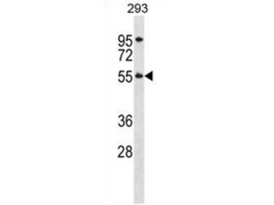 anti TTC8 / BBS8 (N-term)