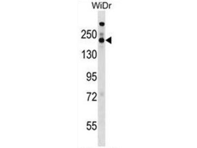 anti STAG1 / Stromal antigen 1 (Center)