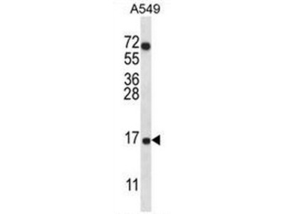 anti COX VIIa related protein (Center)