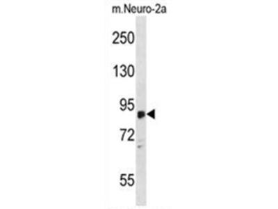 anti ZDHHC8 (C-term)