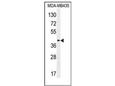 anti CD85f / LILRA5 (N-term)