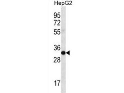 anti SULT1C3 (C-term)