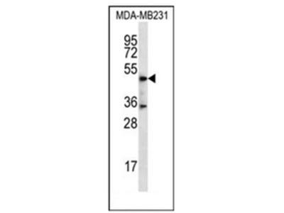 anti DSN1 (C-term)