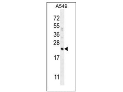 anti Complement factor D (N-term)