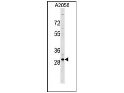 anti Olfactory receptor 4F17 (N-term)
