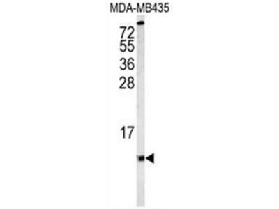 anti Complex IV subunit VIaL (Center)