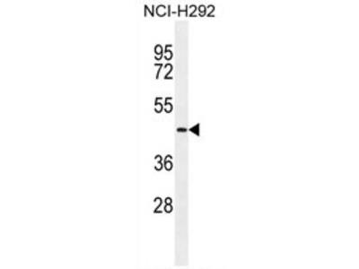 TMPRSS11E (Center) rabbit polyclonal antibody, Aff - Purified
