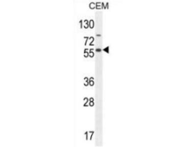 anti NFKBIL1 (Center)