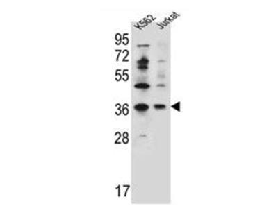 PPP1R3G (C-term) rabbit polyclonal antibody, Aff - Purified