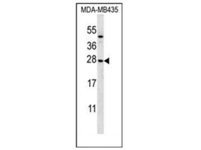 anti KLRC1 / CD159a (N-term)