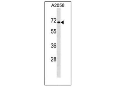 anti CPEB1 (C-term)