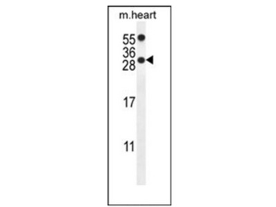 anti PPP1R14C (C-term)