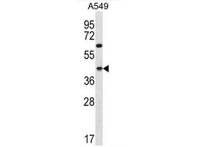 anti C109B (C-term)