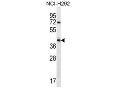 anti ARRDC5 (N-term)