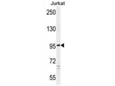 C6orf138 (PTCHD4) (Center) rabbit polyclonal antibody, Aff - Purified
