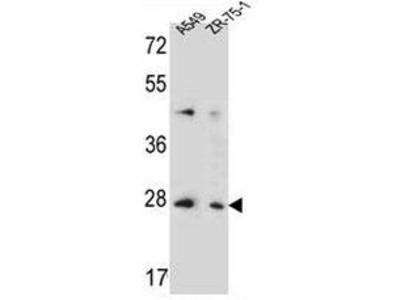 anti TM4SF4 (N-term)