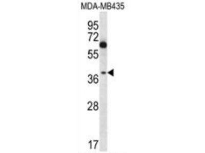 anti NFKBIL1 (C-term)