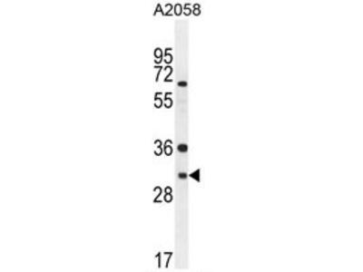 anti ARV1 (N-term)