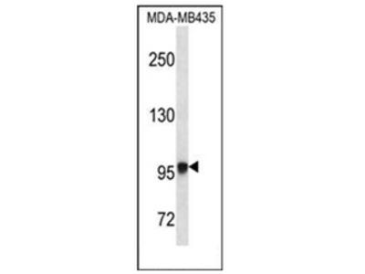 anti Exostosin-like 3 (N-term)