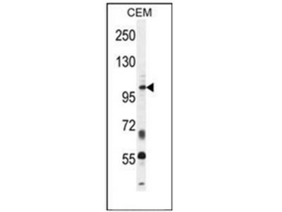 anti INPP5B / 5PTase 2 (C-term)