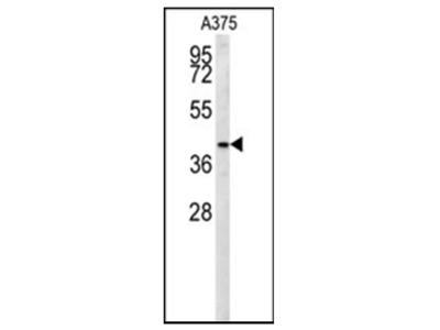 anti SLC35B2 / PAPST1 (C-term)