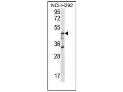 anti Cytosolic beta-glucosidase (C-term)