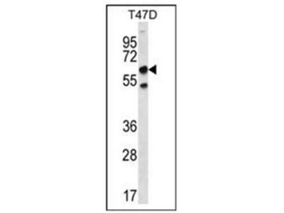 anti SCP2 / SCPX (N-term)