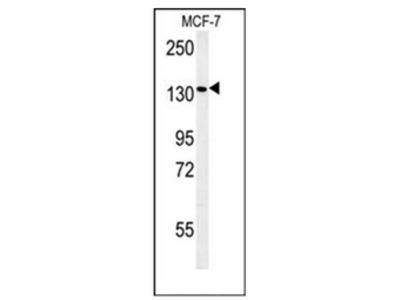 PEX1 (Center) rabbit polyclonal antibody, Aff - Purified