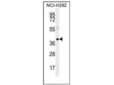 anti KCTD2 (C-term)