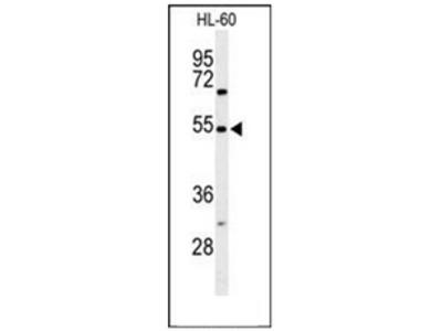 anti Gastrin-releasing peptide receptor (Center)