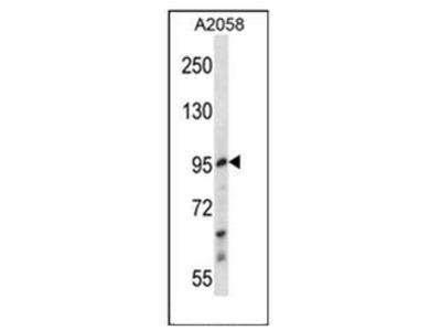 anti E2F7 (Center)