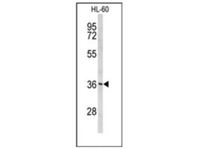 PEX14 (C-term) rabbit polyclonal antibody, Aff - Purified