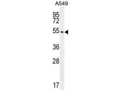 anti C1orf51 (N-term)