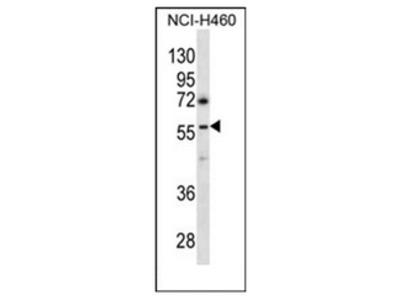 anti GBRR3 (N-term)