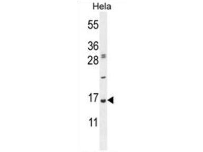 anti UBA52 (C-term)