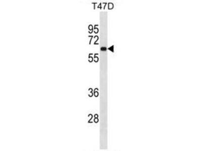 anti ASB3 (N-term)