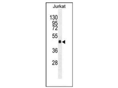 anti Olfactory receptor 4N4 (N-term)