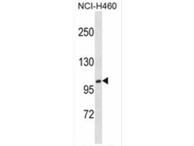 anti Xylosyltransferase 1 (N-term)