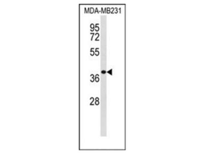anti Exostosin-like 2 (C-term)
