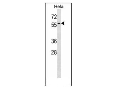 anti Selenoprotein N (SEPN1) (C-term)
