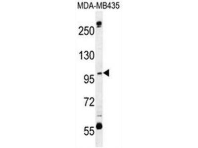 anti CA026 (N-term)