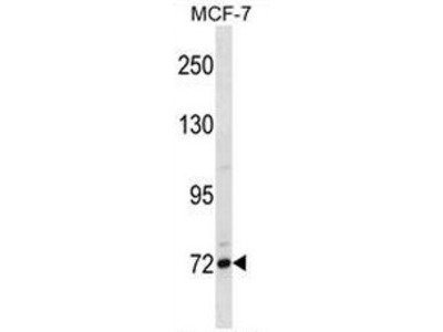 anti CD307 / FCRL5 (Center)