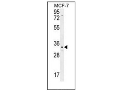 anti Olfactory receptor 6C4 (C-term)