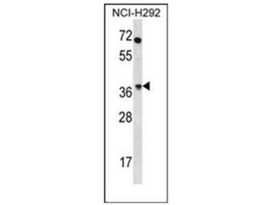 anti Olfactory receptor 4N2 (N-term)